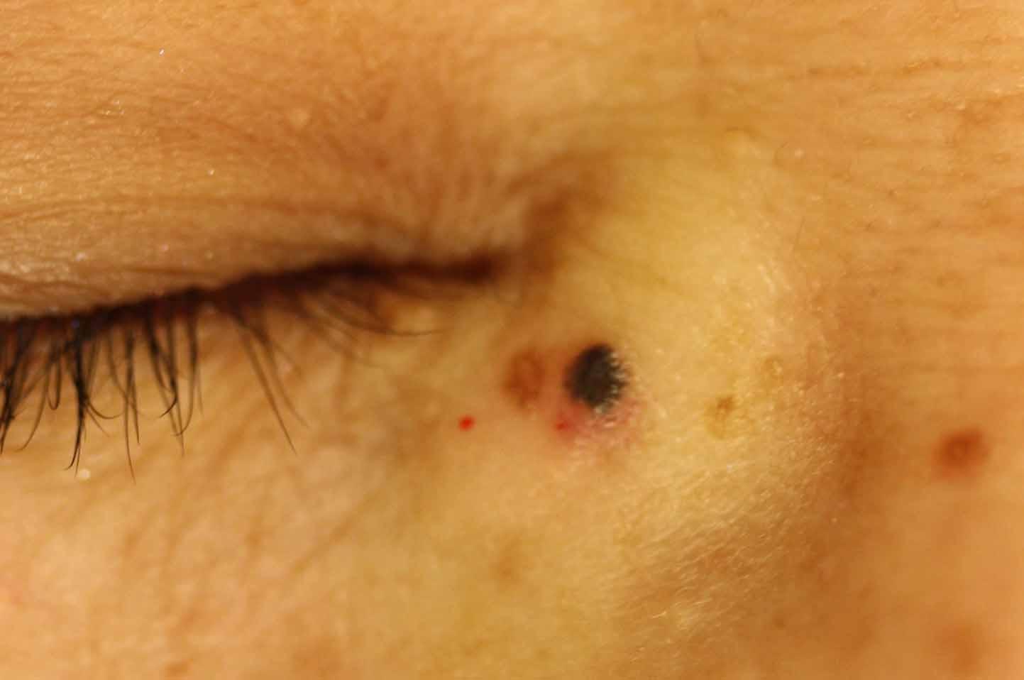 皮膚悪性腫瘍