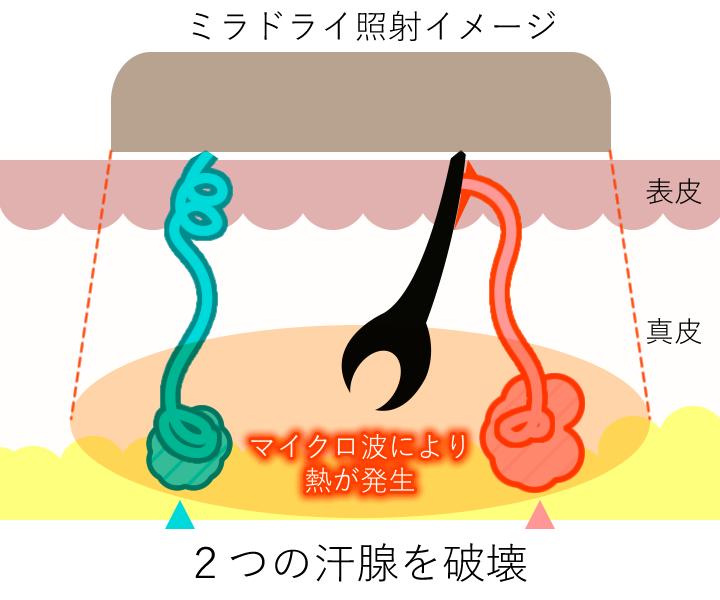 2つの汗腺のイメージ(照射中)