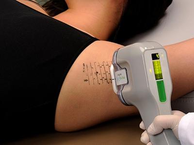 わきが・多汗症の最新の臨床研究を行う形成外科・美容外科専門医が治療を担当